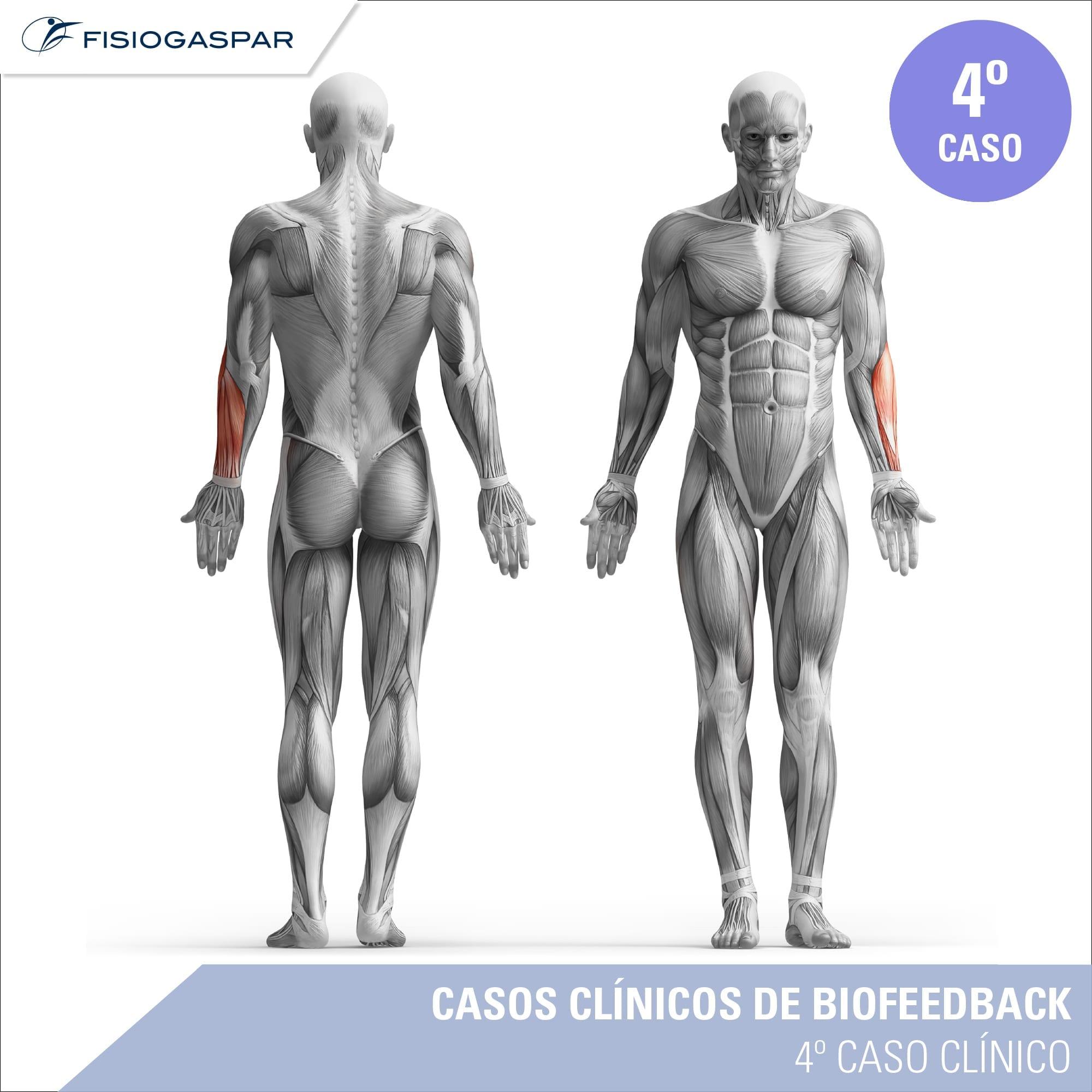 quarto caso clínico de biofeedback